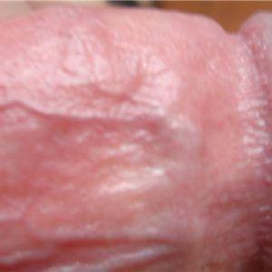 Тромбоз полового члена фото