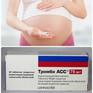 Тромбоасс во время беременности