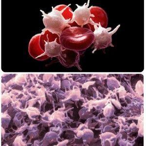 Тромбоциты в крови повышены