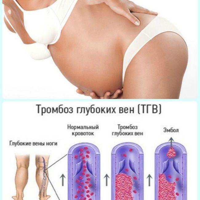Тромбоз и беременность