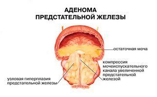 свидетельствует о наличии воспалительного процесса в зоне предстательной железы