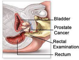 устраняются застойные явления в репродуктивной системе мужчины