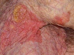Болезнь Боуэна в виде многоочаговой бляшки неправильной формы, красного цвета, с участками роговых масс. Вирус папилломы у мужчин - основная причина
