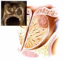 Простатит – воспалительный процесс, поражающий предстательную железу